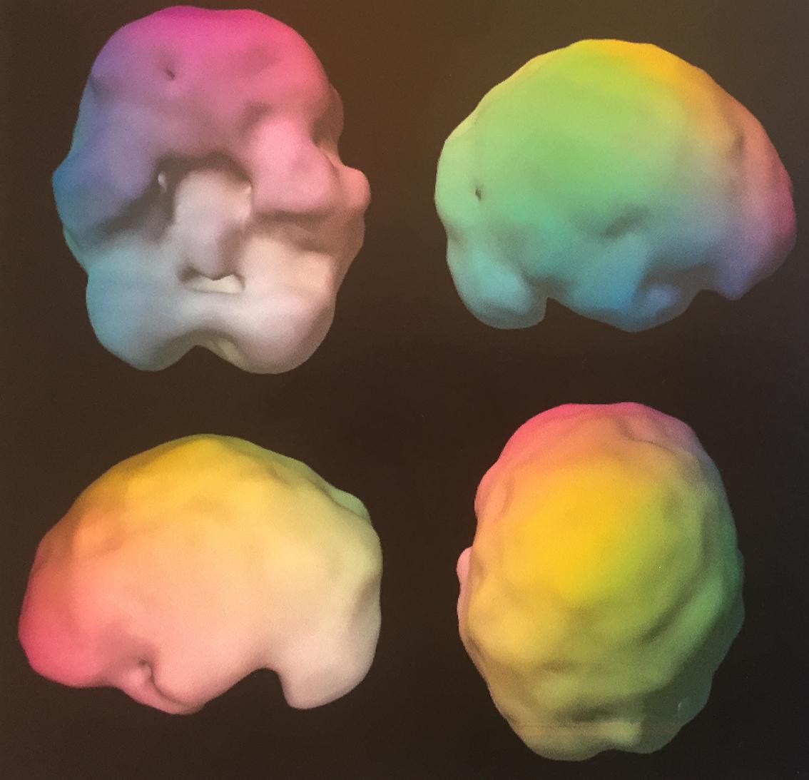 SPECT scanning af hjernen: Underaktivitet efter hjernerystelse ses her på frontal-lap, venste tindinge-lap og omkring hjernestammen.